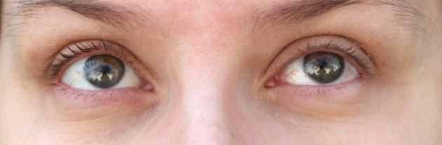 blanc des yeux rouges