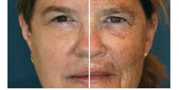 marque soin visage