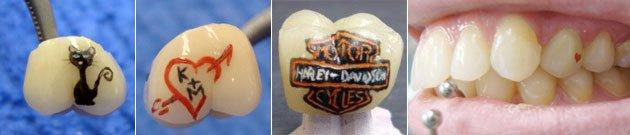 tatouage-dent